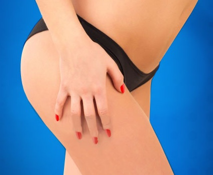 Summer Cellulite And Solutions